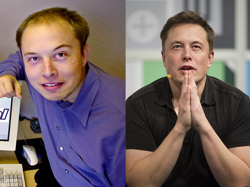 Musk : Before & After Hair Transformation