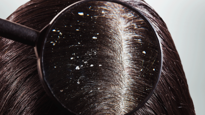dandruff_hair_treatment_in_delhi