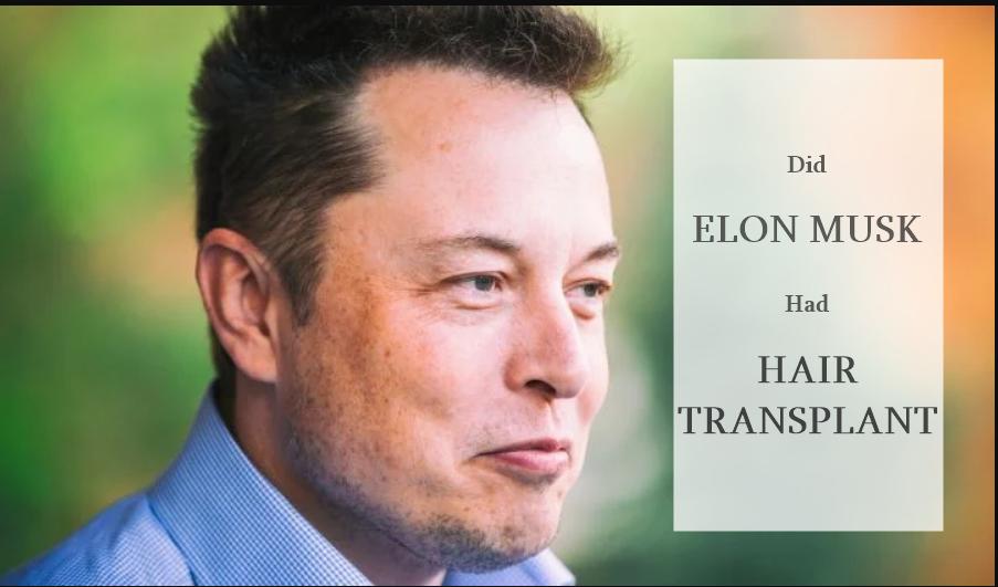 elon-musk-hair-transplant
