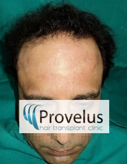 Turban Alopecia Hair Loss affects fron and sides more than Top