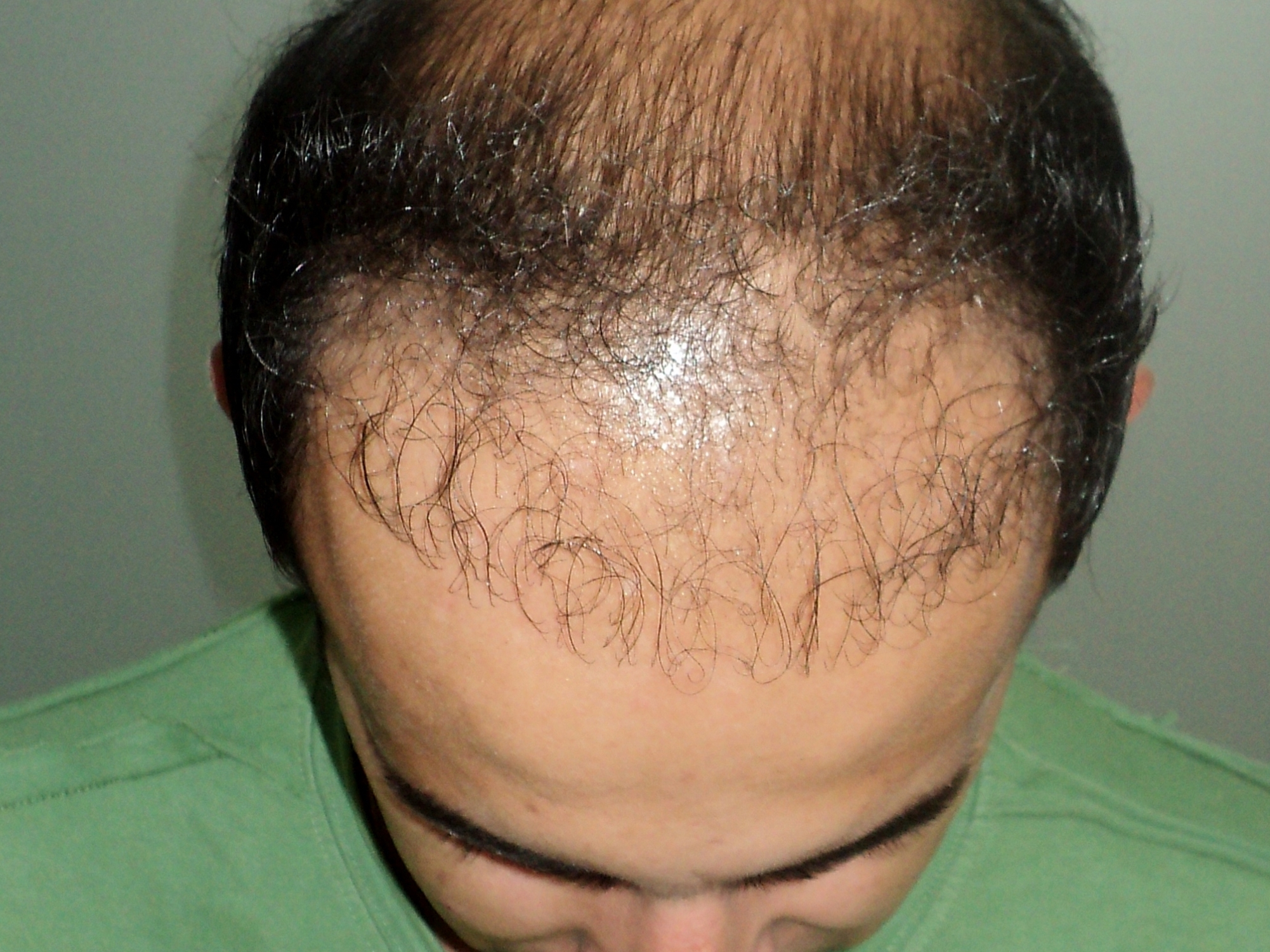 hair transplant and hairline design mistakes