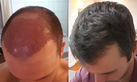 Man after growth from hair transplant surgery in Delhi
