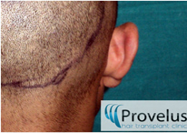 Hair Transplant Donor area trimmed for FUE harvest