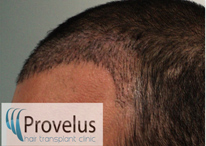 Implanted FUE hair follicles showing new hair line
