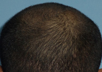 Healed donor area after FUE extraction in a hair transplant client