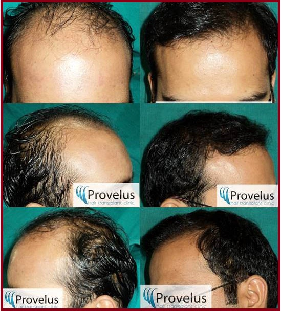 price of FUE treatment in India Delhi