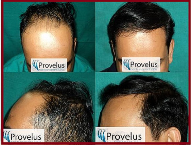 FUE transplant in delhi india